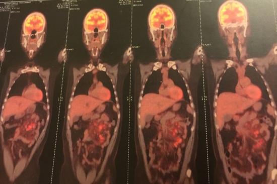 淋巴癌就像二十几个红彤彤的火球,在我的腹部燃烧