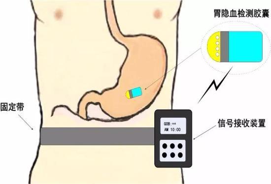 在胃部隐血检测过程中,患者在腰部带一个信号接收装置,通过吞服的胶囊内窥镜把胃部的隐血情况通过无线通讯的方式发送至体外.