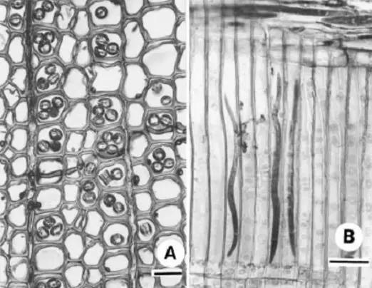 松树管胞中的松材线虫 左图:横切面 右图:纵切图 图片来源:参考文献[3]