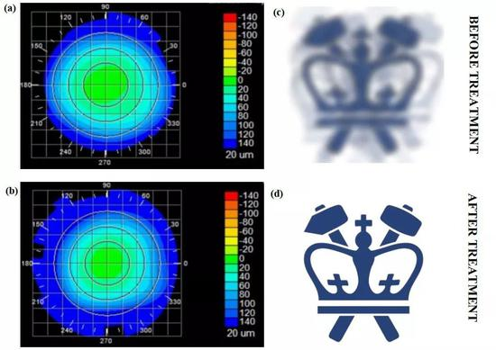 接受治疗前后的角膜形态(左),以及模拟的视觉效果变化(右)