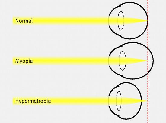 △正常眼睛、近视眼和远视眼的聚光比较(图片来源于网络)