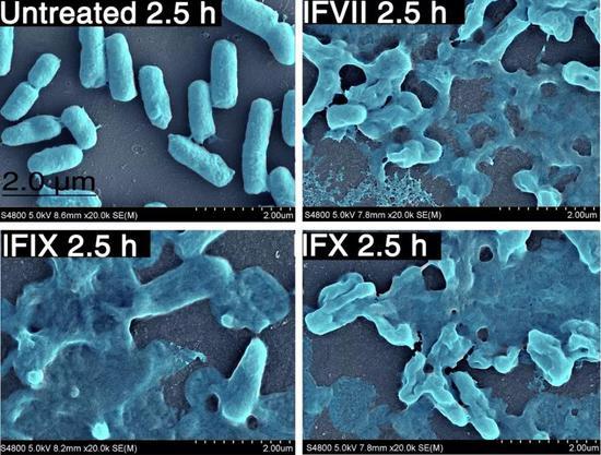 LCs破坏大肠杆菌包膜(图片来源:Coagulation factors VII, IX and X are antibacterial proteins against drug-resistant Gram-negative Bacteria)
