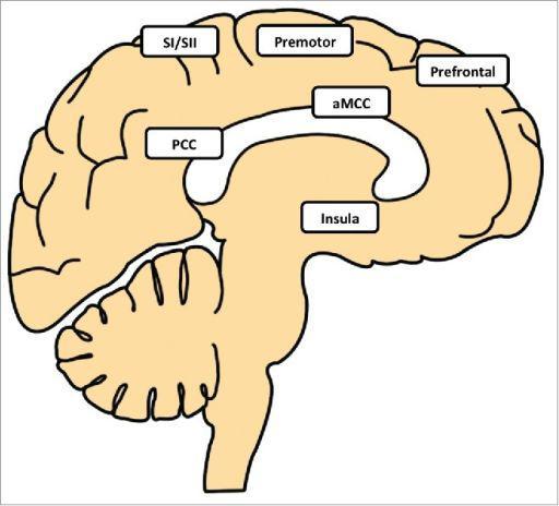 調節體溫的腦區(圖片來自:參考資料11)