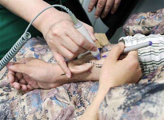 术前的预判寻找皮下桡动、静脉血管(科学网)