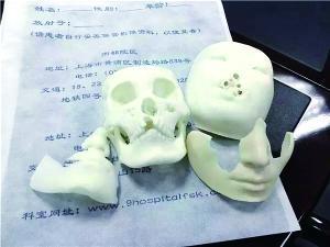 术前用3D打印技术还原模拟患者残缺的面部。