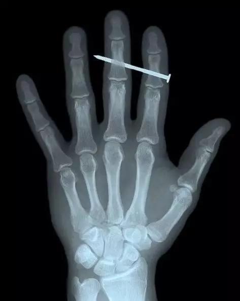 X射线照射人手和铁钉的影像[2]
