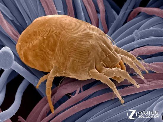 螨虫的种类很多 并严重影响我们身体健康