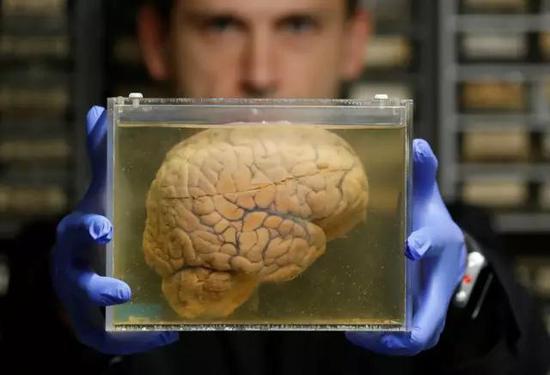 科学家手捧装有液体的容器,里面漂浮着一颗大脑。比利时迪纲尔的精神病院收藏了3000多颗大脑,这只是其中一个。图源:Yves Herman / Reuters