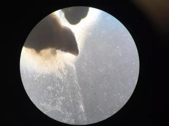 本文笔者的细胞正处于培育过程中,它们会逐渐变成诱导性多功能干细胞。图源:克里斯·洛夫乔伊(Chris Lovejoy)及查理·阿尔伯(Charlie Arber)/伦敦大学学院神经学研究所
