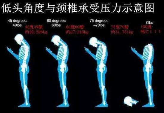 但是,在你前倾低头60度看手机时,颈部就需承受25~30公斤的重量!