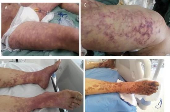 感染犬咬二氧化碳嗜纤维菌后,患者体表明显出现的青紫斑迹。图源:ScienceDirect