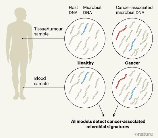 ▲在各种组织和肿瘤中都可以发现微生物的核酸片段,利用人工智能对血液中核酸片段的特征进行识别(参考资料[2])