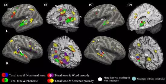 图解:元分析的激活结果图:红色表示声调母语者的声调感知,蓝色表示非声调母语者的声调感知,绿色表示音位感知,紫色和黄色分别表示词长度和句子长度的韵律感知(Liang&Du,2018)。