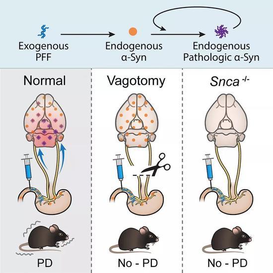 正因为看到帕金森病相关的早期特征和晚期特征、运动障碍和非运动障碍都在小鼠中得到了体现,研究团队相信,他们的结果可以为帕金森病的研究提供新的模型,例如,在早期症状的前阶段到全面恶化的整个过程中检验特定疗法的效果。   这些结果有力地支持了帕金森病源于肠道、传到大脑的假设。不过Ted Dawson教授看得更远,第一,这项研究将激发未来肠-脑联系的更多研究;第二,对引起-syn蛋白错误折叠和扩散的因素、分子或感染原因需要探索;第三,或许阻止-syn蛋白从肠到脑的传播可以作为治疗时的一个目标。他说。