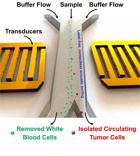 利用聲鑷技術可以分離血細胞和腫瘤細胞。圖片來源:Tony Jun Huang, PhD, Pennsylvania State University