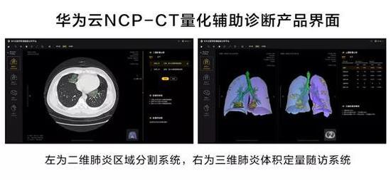 华为云AI量化辅助诊断 | 华为官网