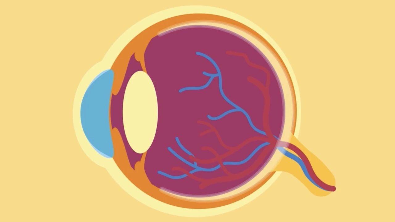 无需手术永久治好近视 全球首个无创近视治疗术诞生