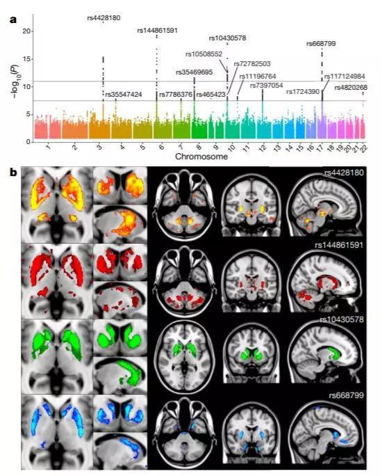 ▲基因组上的少数几个位点,就能影响大脑脑区的体积(图片来源:参考资料[2])