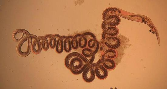 小林姬鼠体内取出的寄生蠕虫