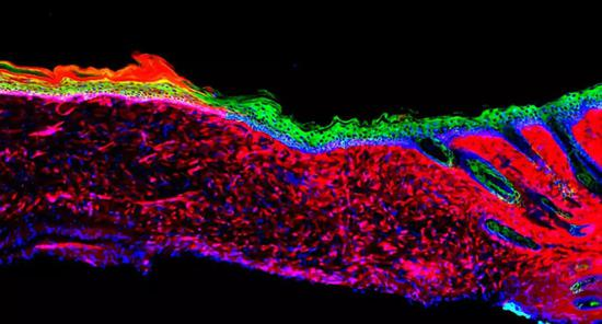 DGMT介导的新生皮肤切片荧光图。(图片来源:Juan Carlos)