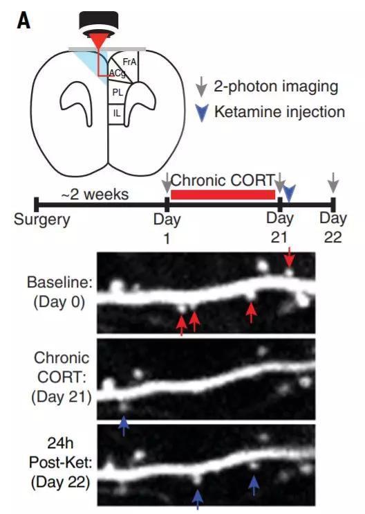 ▲在氯胺酮治疗后,一些树突棘(组成突触的一部分,蓝色箭头所示)开始恢复