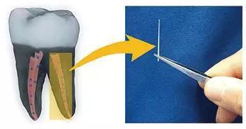 研究者创造了一种更优的牙齿填充材料,该材料和纳米金刚石结合在了一起。当掺入杀菌药之后,该种材料可以阻止细菌生长。至此,研究者已经在拔出的牙齿上测试了这种材料。AmericanChemical Society/Dong-Keun Lee