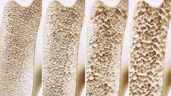 图 | 骨质疏松 (来源: Crevis/Adobe)