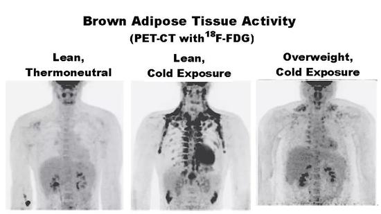 不同温度和肥胖程度下,PET/CT扫描的棕色脂肪组织