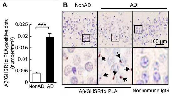 ▲在AD患者的大脑海马体中,淀粉样蛋白沉积与饥饿素受体结合(图片来源:参考资料[1])