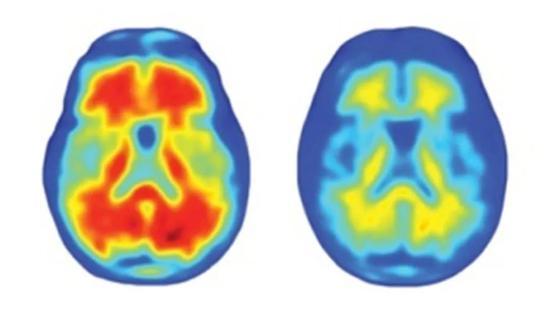 顾问团全员反对 美国18年来首款抗阿尔茨海默病新药引发争议