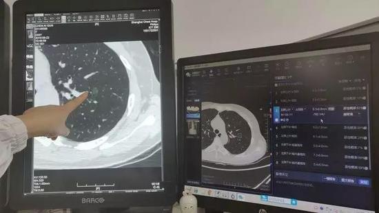 人工智能读片系统 | 上海市胸科医院