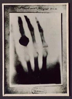 1895年12月,威廉·伦琴拍摄的x光照片