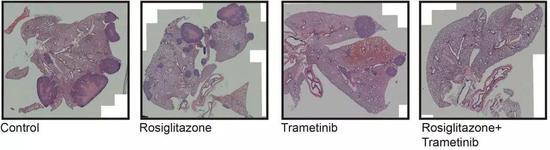 结合治水疗的小鼠肺中,转变瘤更微少