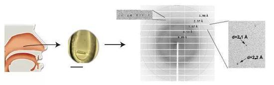 ▲从慢性鼻-鼻窦炎伴鼻息肉的患者中取得黏液团块,获取CLC进行晶体结构分析