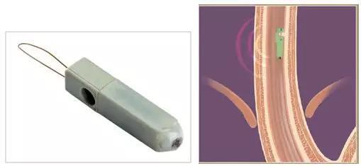左图是上消化道pH胶囊内窥镜,右图是其固定在食管臂上的示意图,通过无线通讯的方式将持续采集到的pH值发送至体外.