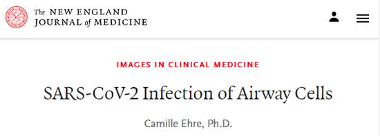 """NEJM高清图像:呼吸道细胞被新冠病毒感染的""""惨烈""""景象"""