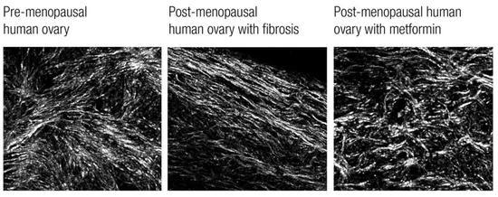 """第一张和第三张图相近,说明在纤维化程度上,服用二甲双胍女性的卵巢,还保持着绝经前""""年轻""""的状态"""