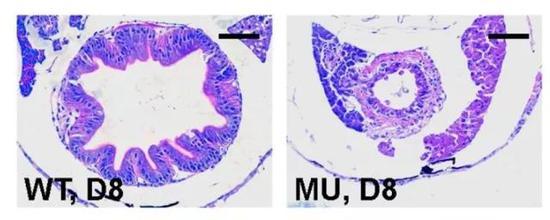 圖4 突變體腸道上皮細胞結構紊亂,有細胞脫落(來源:Deficiency in class III PI3-kinase confers postnatal lethality with IBD-like features in zebrafish)