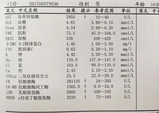 注意肌酸激酶和肌酸激酶同工酶等几项指标的数值