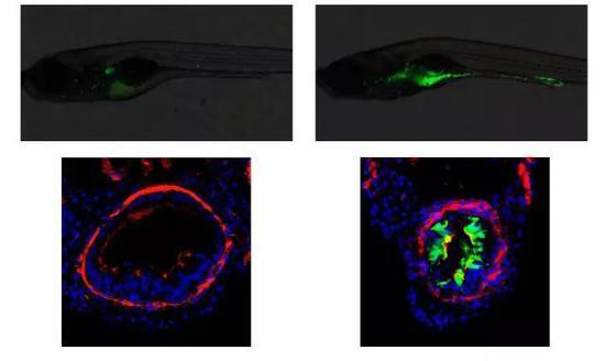 圖5 綠色熒光標記的中性粒細胞在突變體腸道上皮聚集(來源:Deficiency in class III PI3-kinase confers postnatal lethality with IBD-like features in zebrafish)