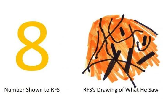 """左边是展示给病患的数字""""8"""",右侧是病患根据""""8""""画出的图形"""