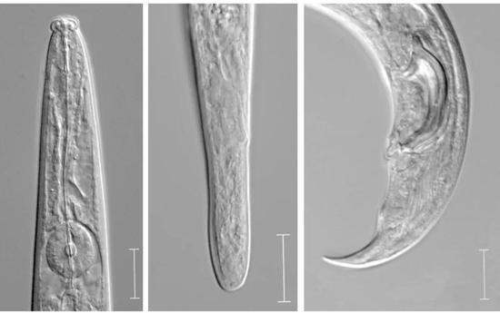 今年10月从美国进口的原木中截获的松材线虫照片,分别为头部,雌虫尾部和雄虫尾部的特征。标尺= 10 um 图片来源:宁波出入境检验检疫技术中心