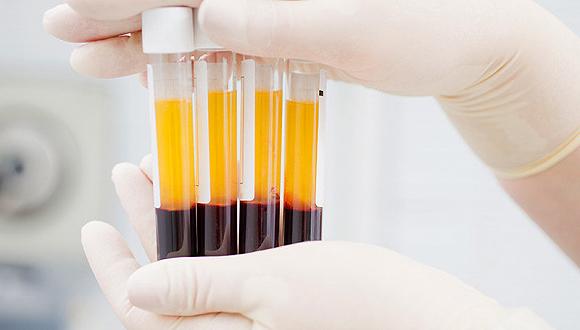 康复者的血浆为什么能救治新冠肺炎重症患者?