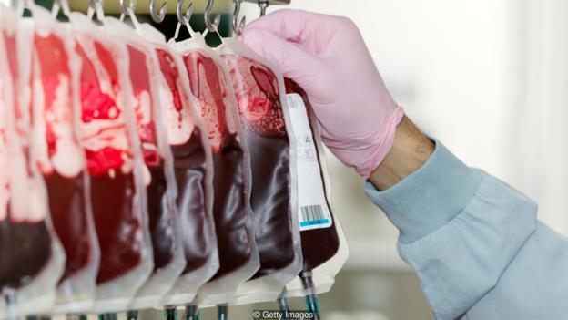 输血能减缓衰老进程吗?