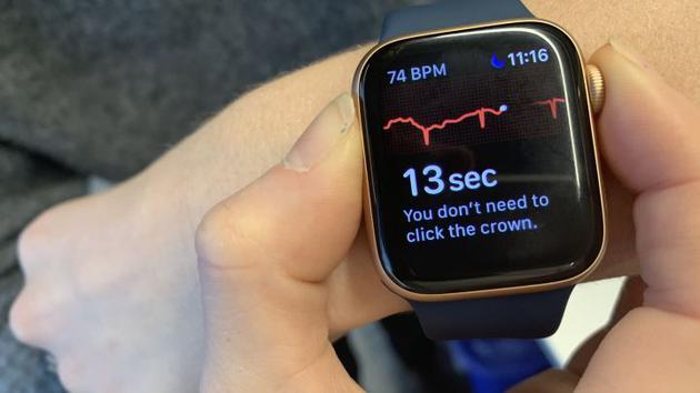 Apple Watch ECG功能