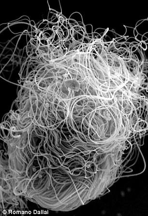 二裂果蝇的精子。尽管卷成一团,但科学家还是对其长度进行了测量,发现伸开时长度可达5.8厘米,是二裂果蝇体长的20倍以上。