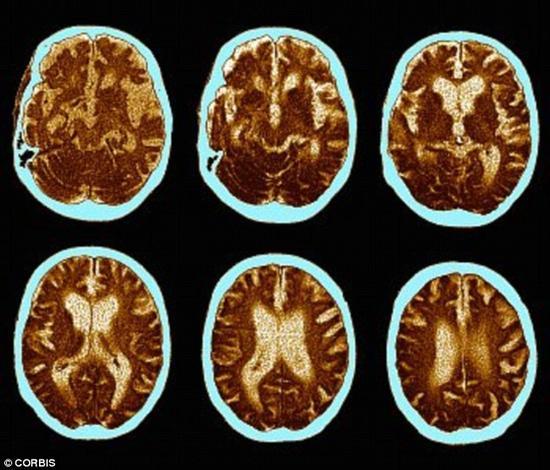 性生活频繁的老人出现痴呆的可能性更低。一项研究指出,规律的性爱活动能够帮助我们长出新的脑细胞。图为痴呆病人的脑部扫描。