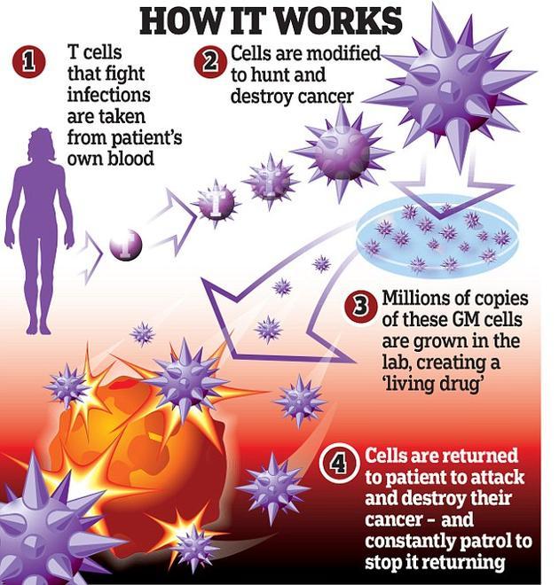 """T细胞免疫疗法持续阻止癌症复发:如同""""活药物"""""""