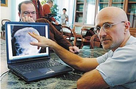 专家否认中国将进行全球首例换头手术