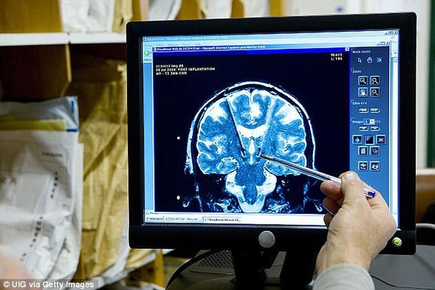 研究人员在清醒的病人脑部的语言区表面安放了电极,利用这些电极来监测病人在收听录音时脑细胞的电反应模式。然后他们建立了一个计算机模型,可以让播放出来的语音与这些电信号相匹配。